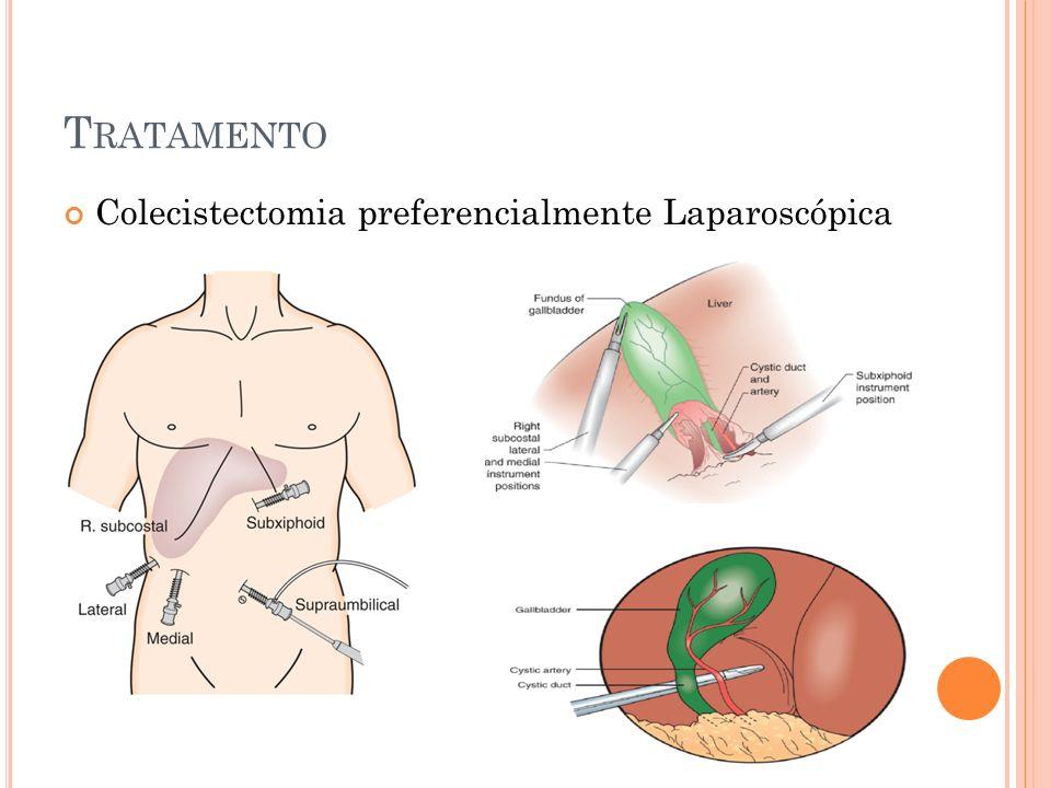 Tratamento Colecistectomia preferencialmente Laparoscópica