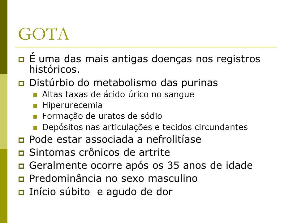 GOTA É uma das mais antigas doenças nos registros históricos.