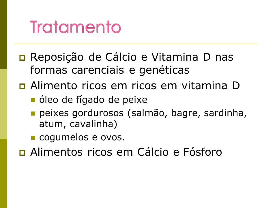 Reposição de Cálcio e Vitamina D nas formas carenciais e genéticas