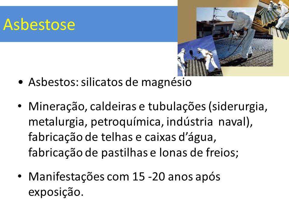 Asbestose Asbestos: silicatos de magnésio