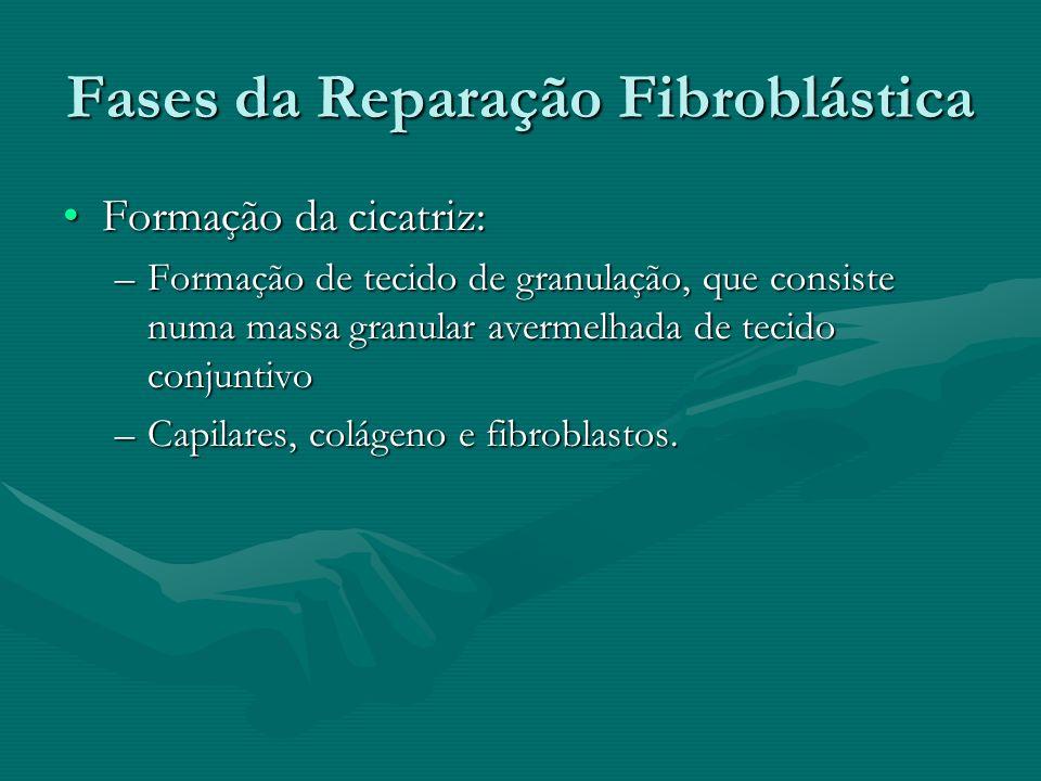 Fases da Reparação Fibroblástica