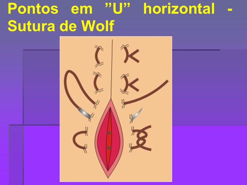 Pontos em U horizontal -Sutura de Wolf
