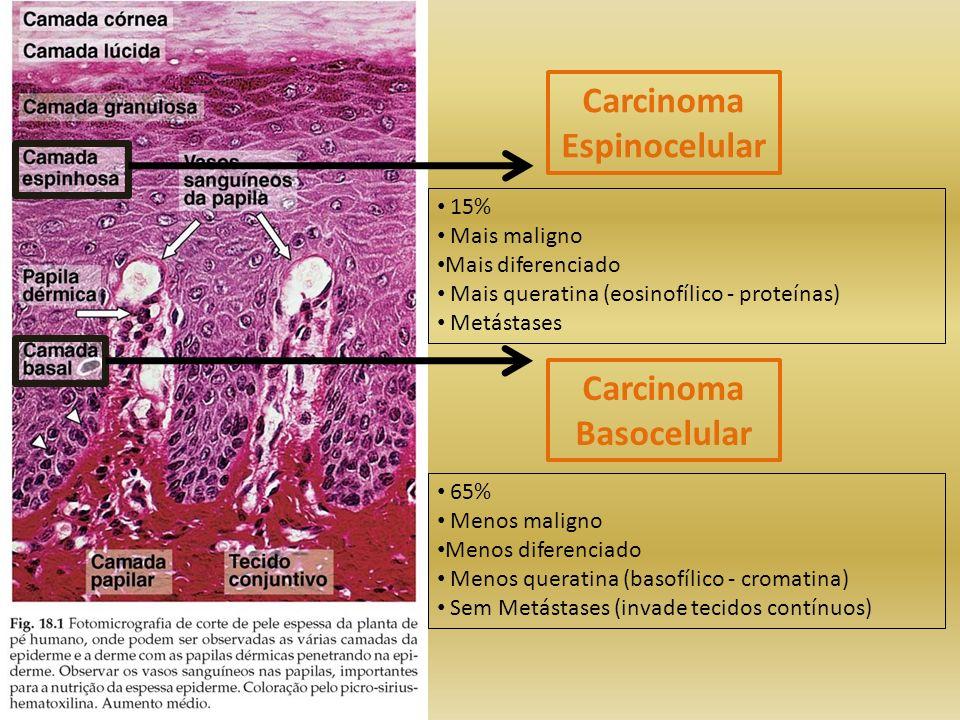 Carcinoma Espinocelular Carcinoma Basocelular