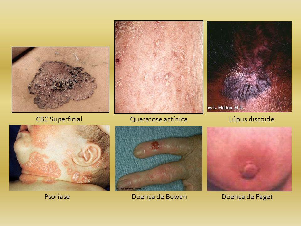 CBC Superficial Queratose actínica Lúpus discóide Psoríase Doença de Bowen Doença de Paget