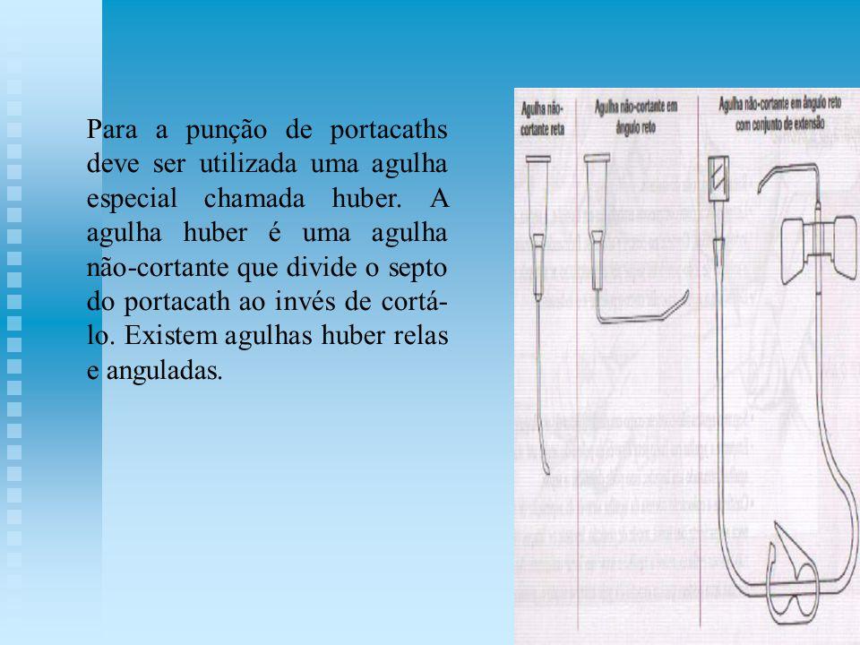 Para a punção de portacaths deve ser utilizada uma agulha especial chamada huber.