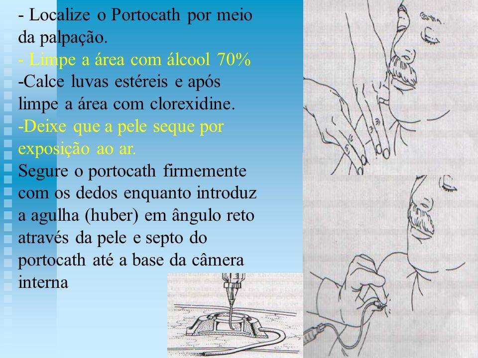 - Localize o Portocath por meio