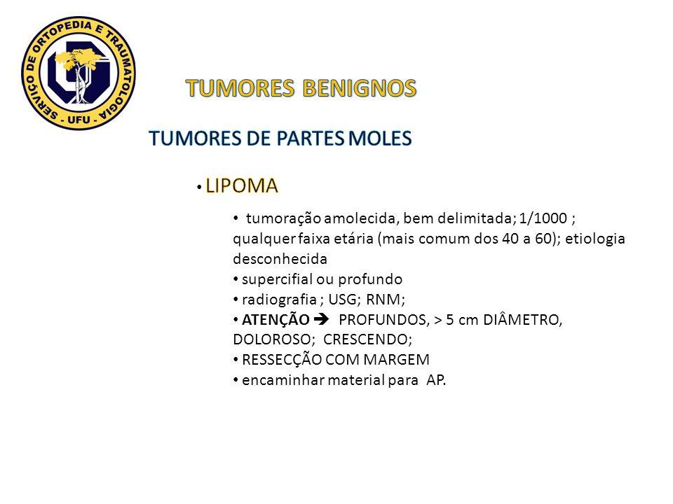 TUMORES BENIGNOS TUMORES DE PARTES MOLES LIPOMA