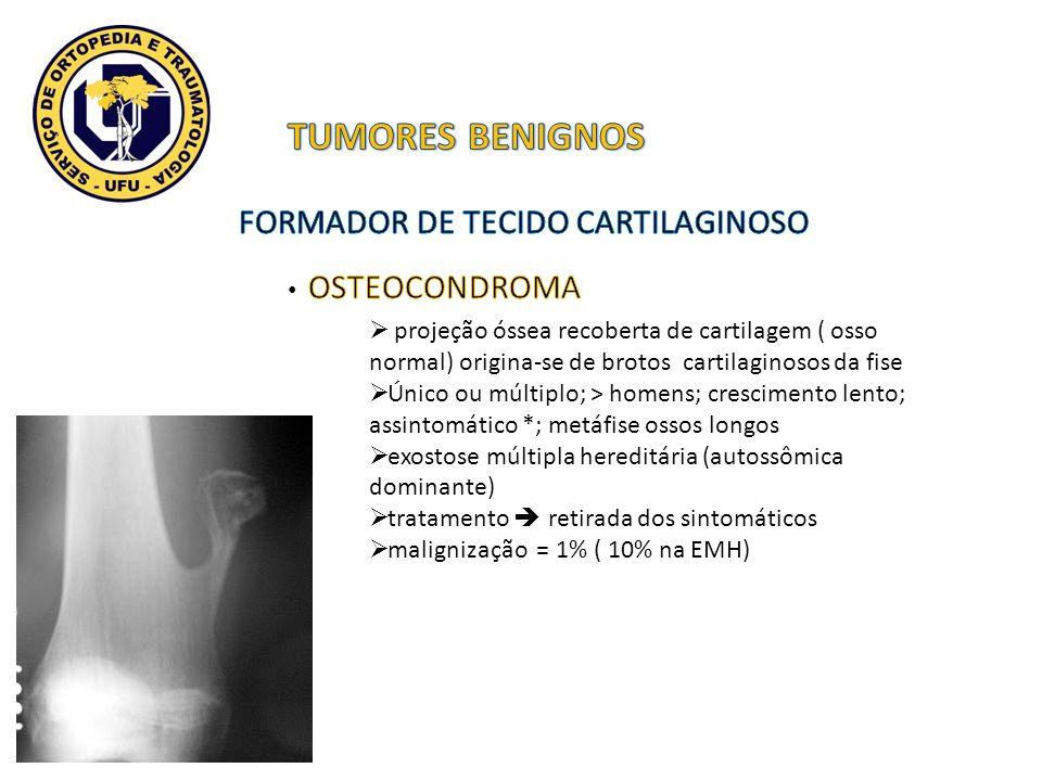 TUMORES BENIGNOS FORMADOR DE TECIDO CARTILAGINOSO OSTEOCONDROMA