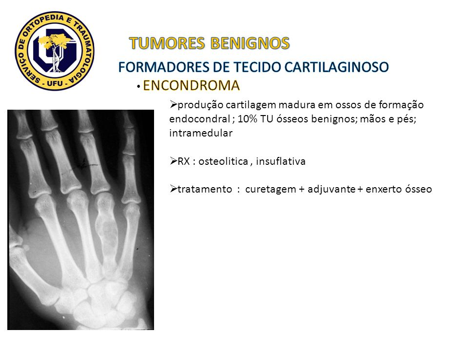 TUMORES BENIGNOS FORMADORES DE TECIDO CARTILAGINOSO ENCONDROMA