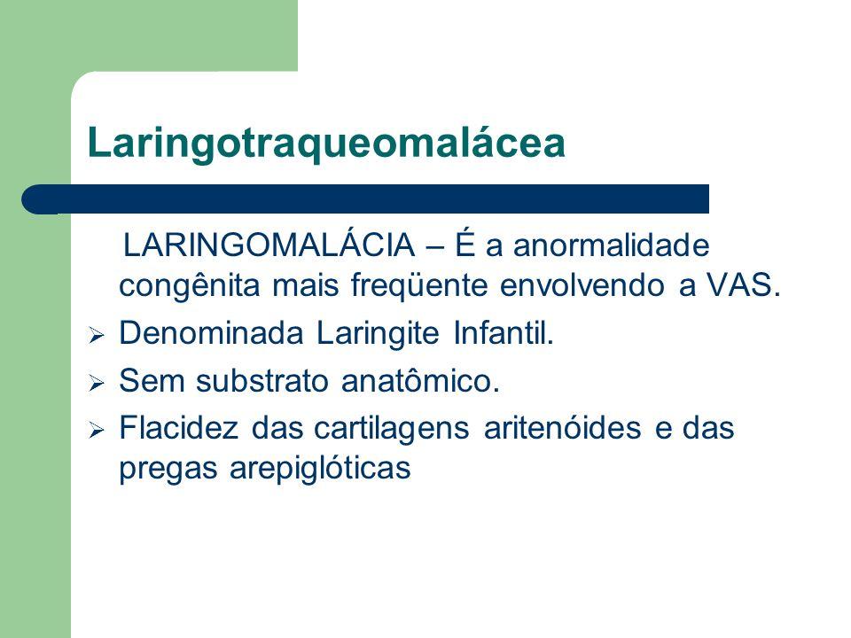 Laringotraqueomalácea