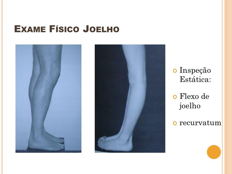 Exame Físico Joelho Inspeção Estática: Flexo de joelho recurvatum