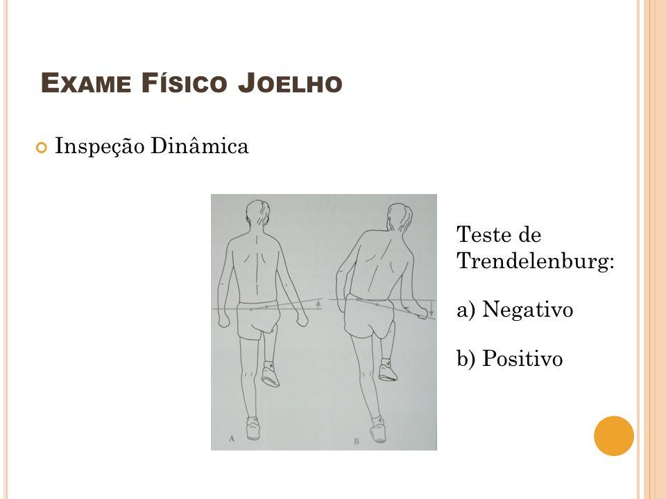Exame Físico Joelho Inspeção Dinâmica Teste de Trendelenburg: