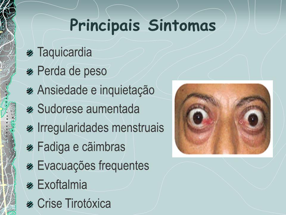 Principais Sintomas Taquicardia Perda de peso Ansiedade e inquietação