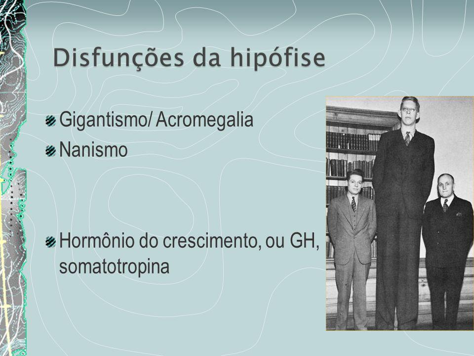 Gigantismo/ Acromegalia