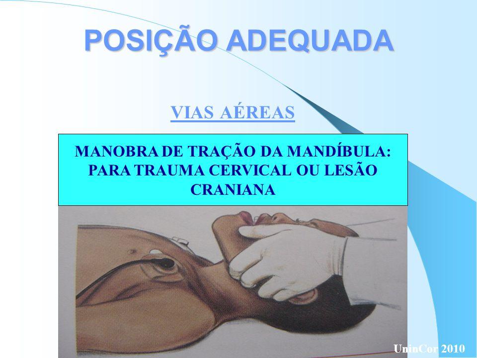MANOBRA DE TRAÇÃO DA MANDÍBULA: PARA TRAUMA CERVICAL OU LESÃO
