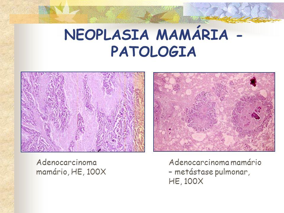 NEOPLASIA MAMÁRIA - PATOLOGIA