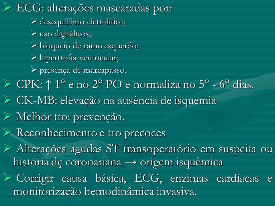 ECG: alterações mascaradas por: