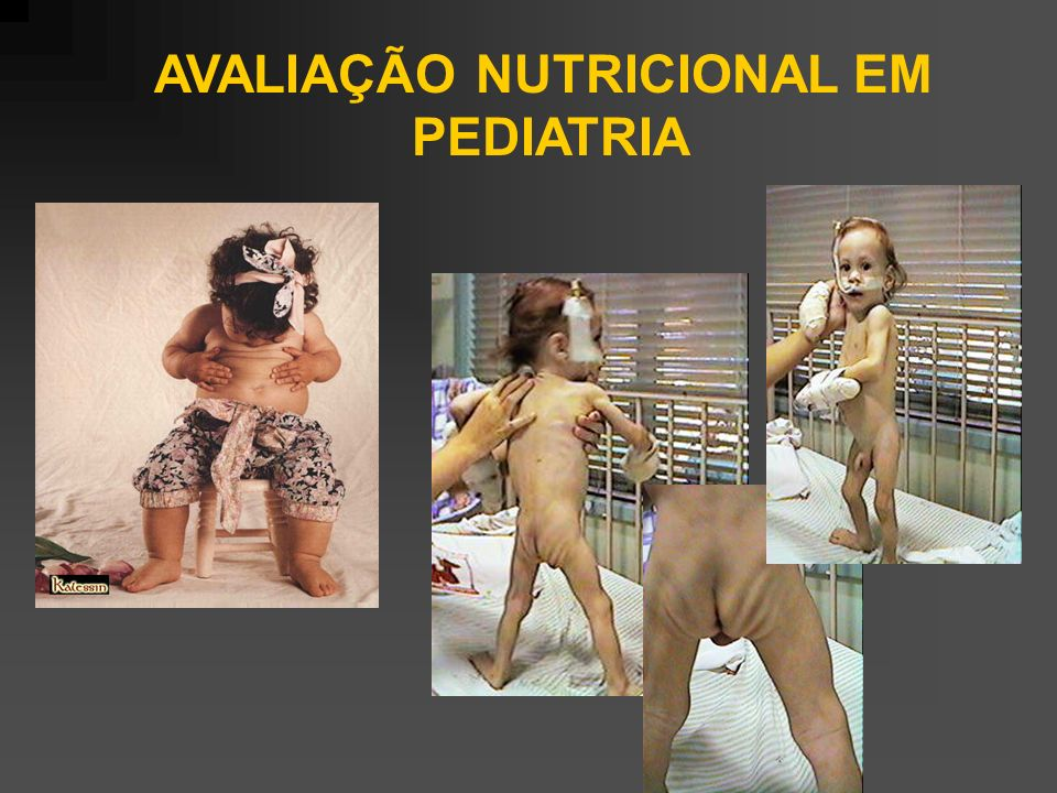 AVALIAÇÃO NUTRICIONAL EM
