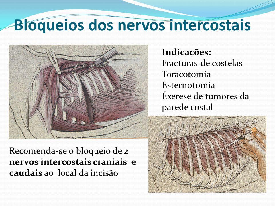 Bloqueios dos nervos intercostais