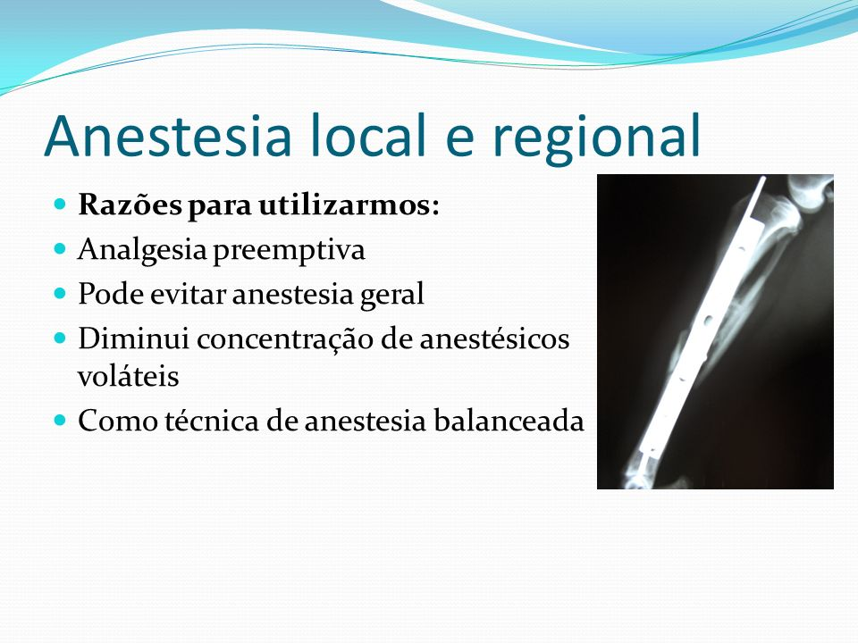 Anestesia local e regional