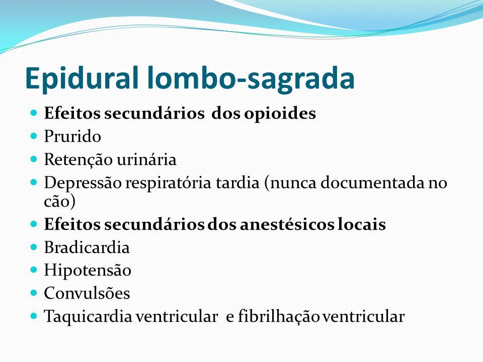 Epidural lombo-sagrada