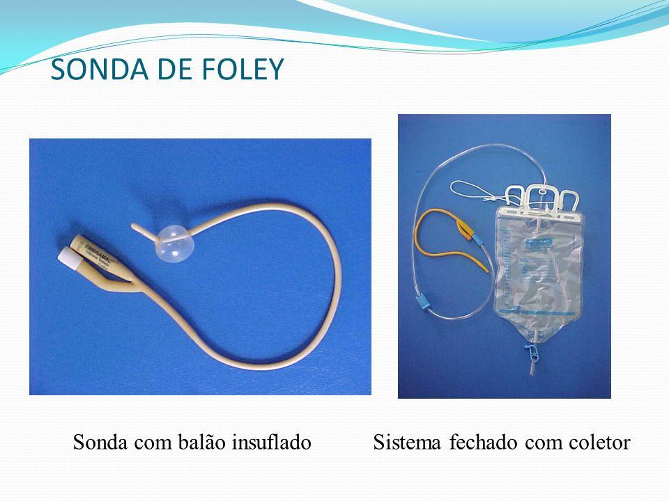 SONDA DE FOLEY Sonda com balão insuflado Sistema fechado com coletor