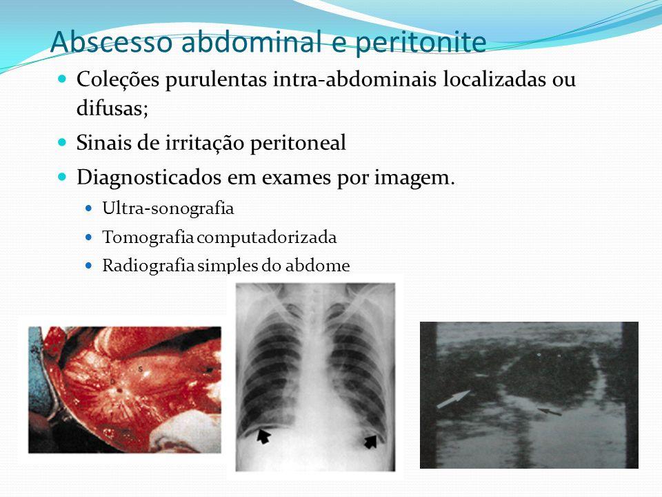 Abscesso abdominal e peritonite