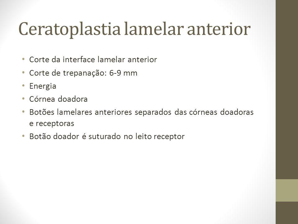 Ceratoplastia lamelar anterior