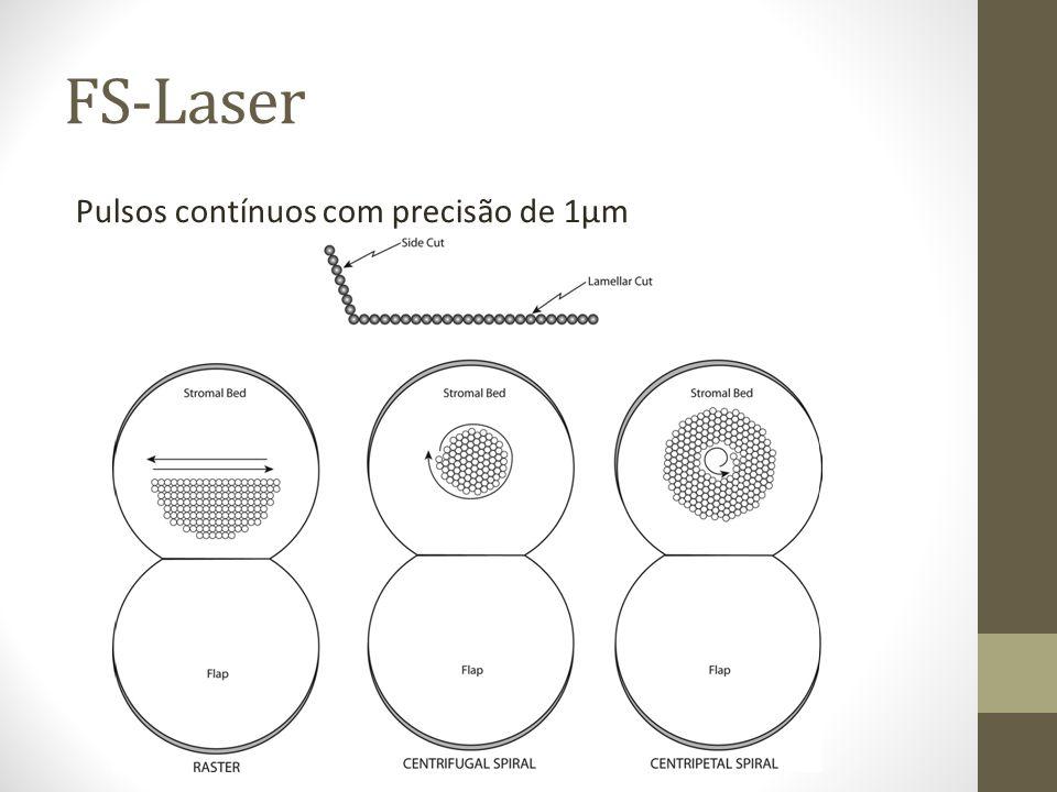 FS-Laser Pulsos contínuos com precisão de 1µm