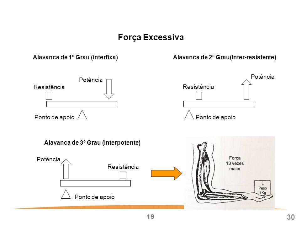 Força Excessiva 30 Alavanca de 1º Grau (interfixa) Resistência