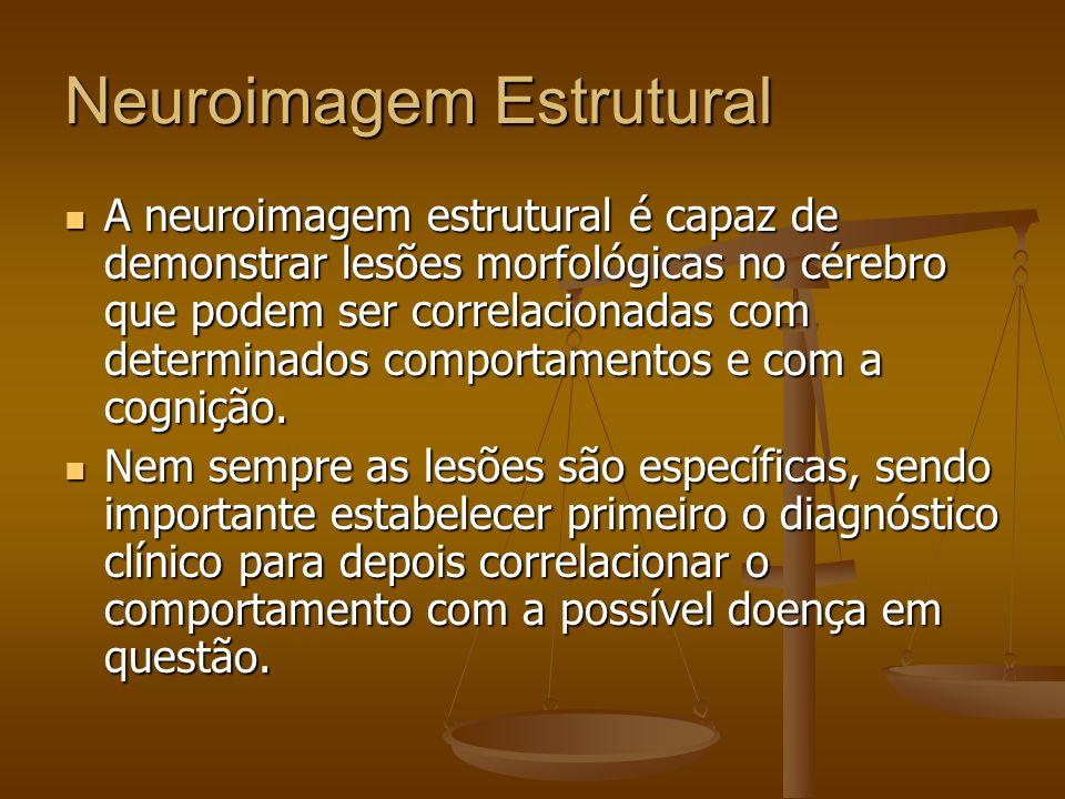 Neuroimagem Estrutural