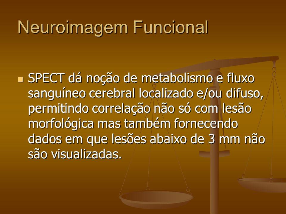 Neuroimagem Funcional