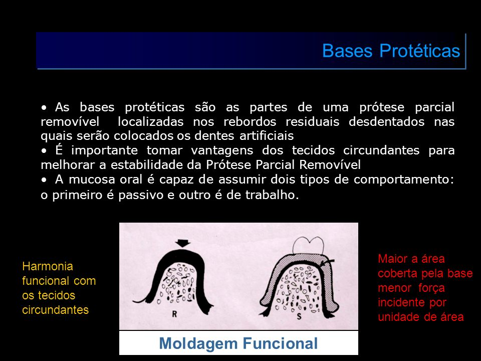 Bases Protéticas Moldagem Funcional