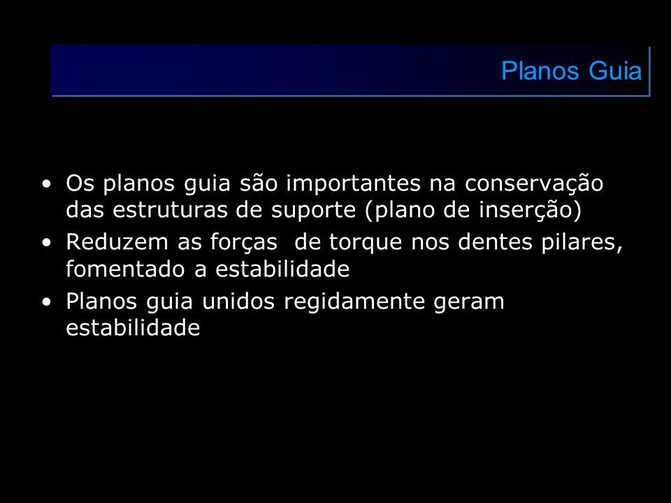 Planos GuiaOs planos guia são importantes na conservação das estruturas de suporte (plano de inserção)