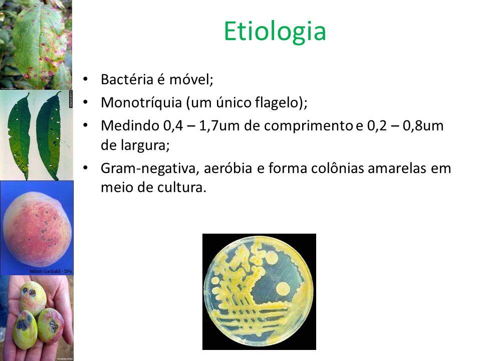 Etiologia Bactéria é móvel; Monotríquia (um único flagelo);