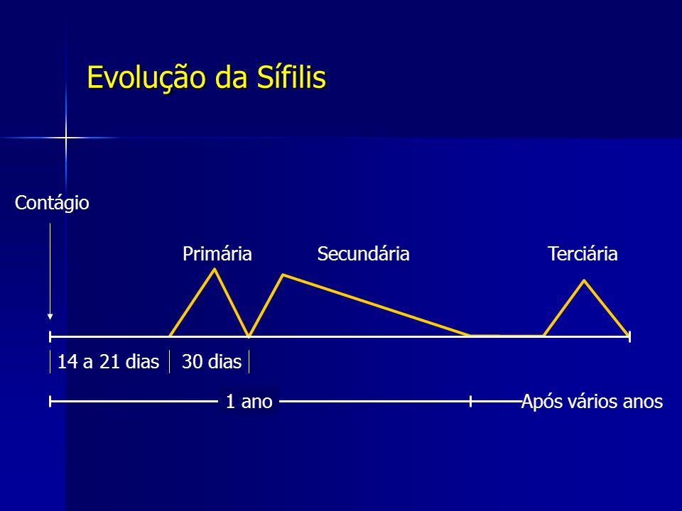 Evolução da Sífilis Contágio Primária Secundária Terciária