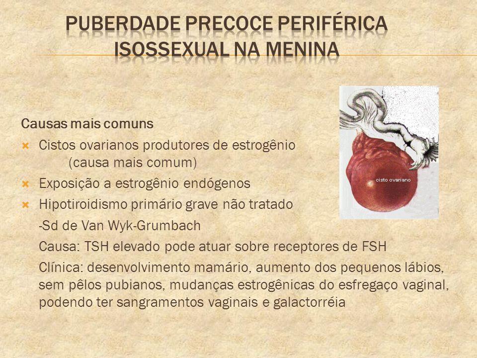 Puberdade precoce periférica isossexual na menina