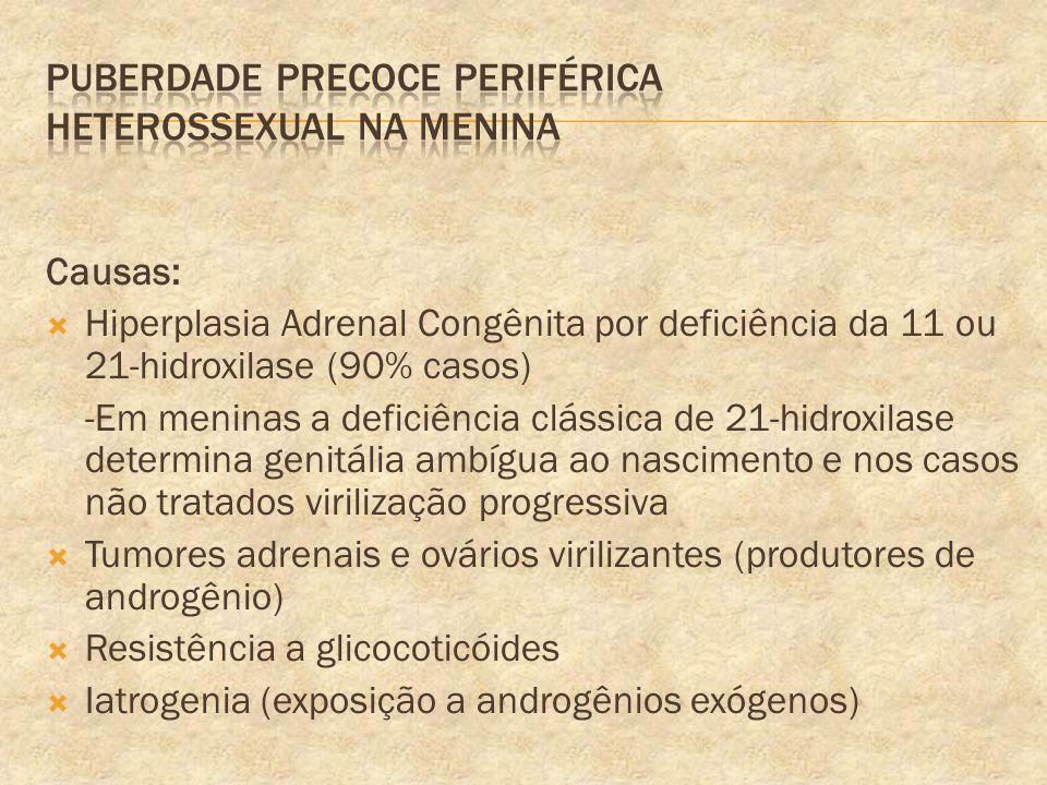 Puberdade precoce periférica Heterossexual na menina