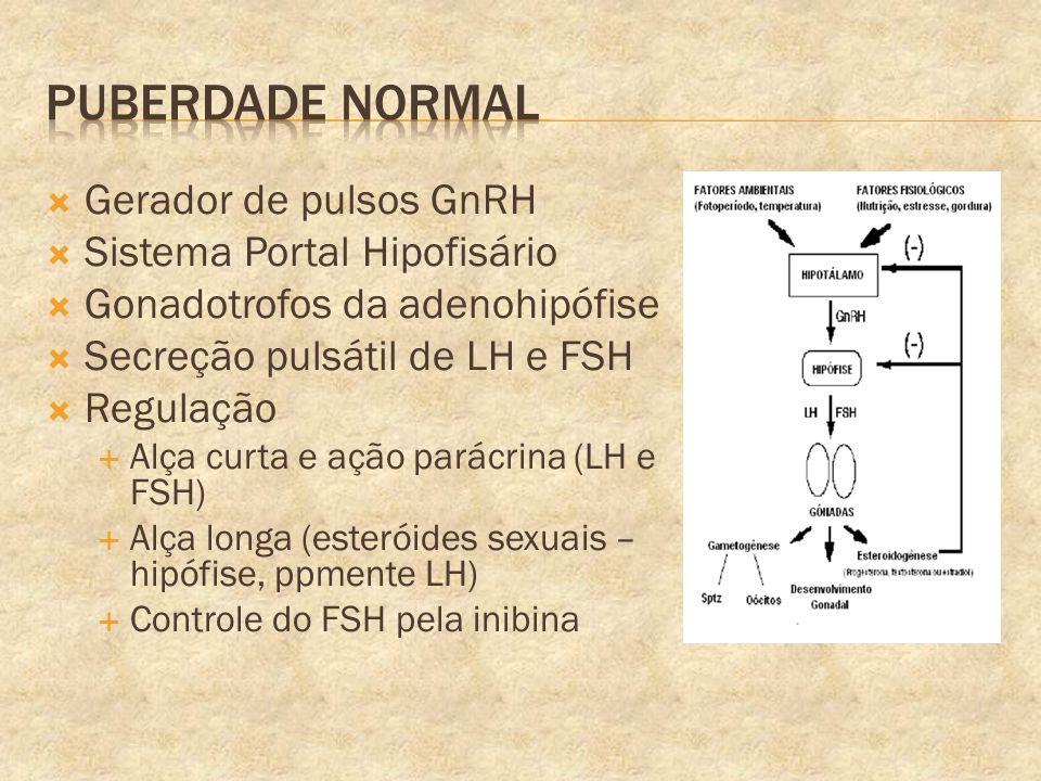 Puberdade Normal Gerador de pulsos GnRH Sistema Portal Hipofisário