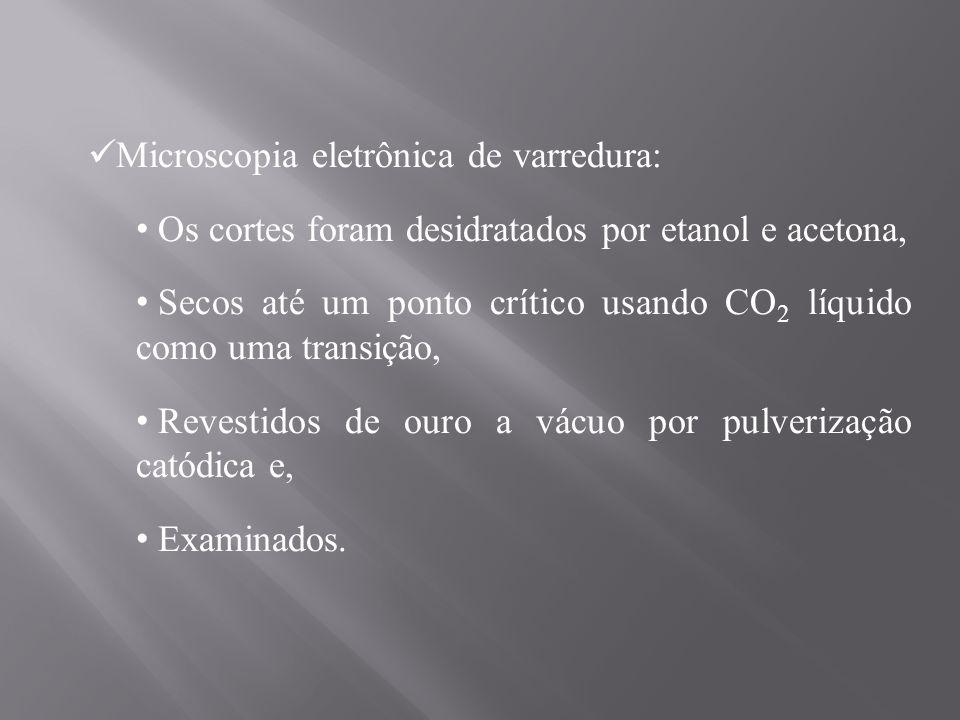 Microscopia eletrônica de varredura: