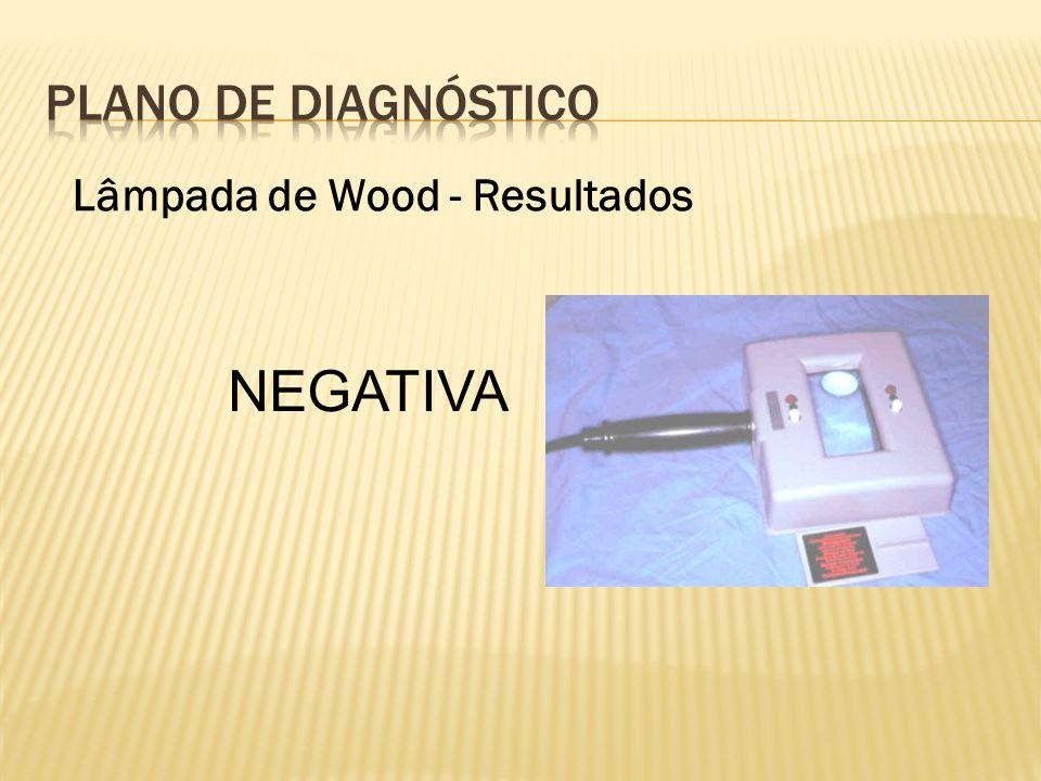 PLANO DE Diagnóstico Lâmpada de Wood - Resultados NEGATIVA