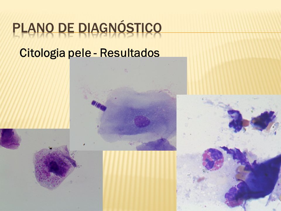 PLANO DE Diagnóstico Citologia pele - Resultados