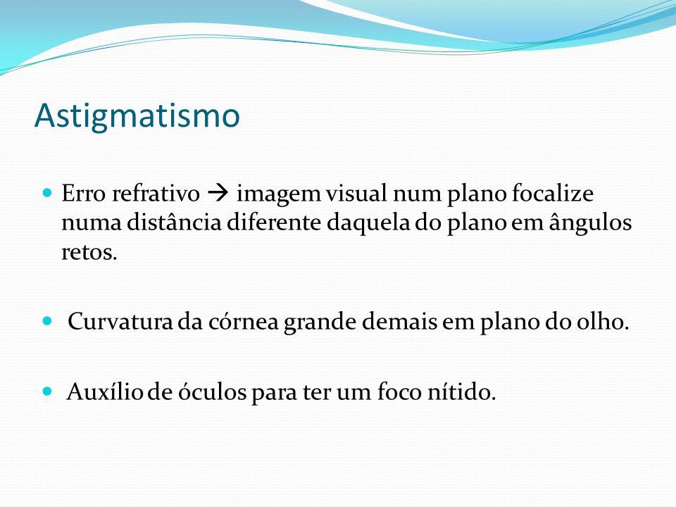 Astigmatismo Erro refrativo  imagem visual num plano focalize numa distância diferente daquela do plano em ângulos retos.