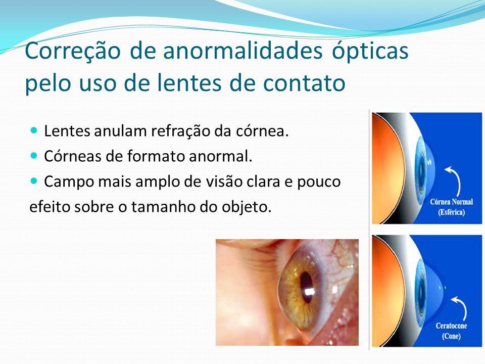 Correção de anormalidades ópticas pelo uso de lentes de contato
