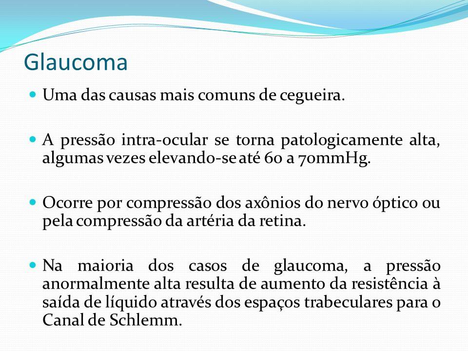 Glaucoma Uma das causas mais comuns de cegueira.