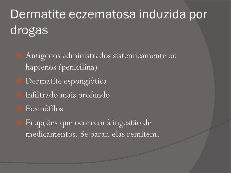 Dermatite eczematosa induzida por drogas
