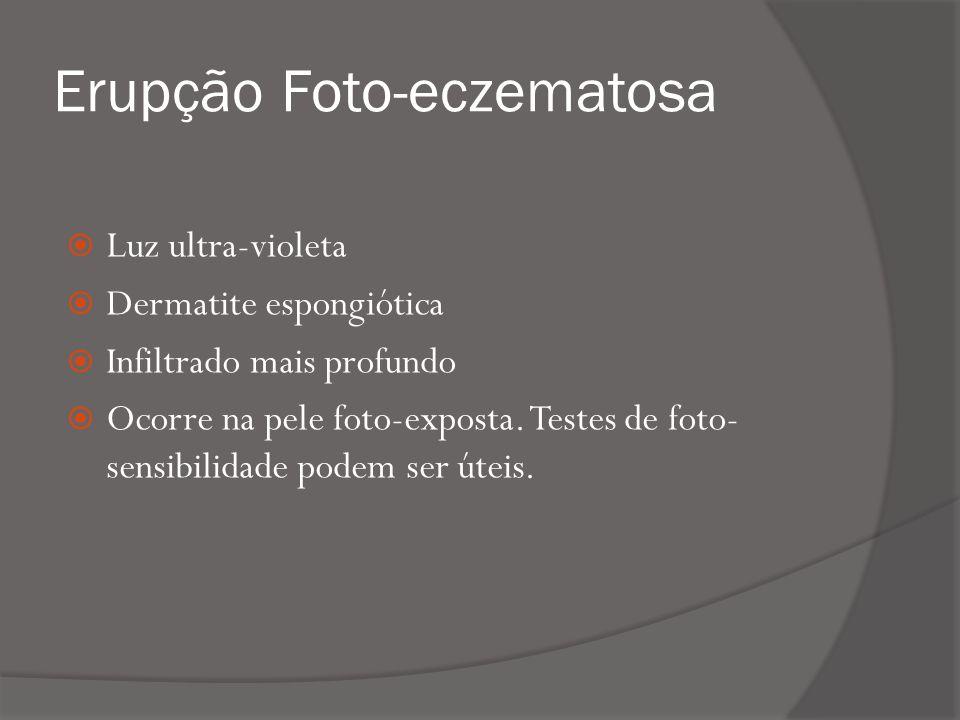 Erupção Foto-eczematosa
