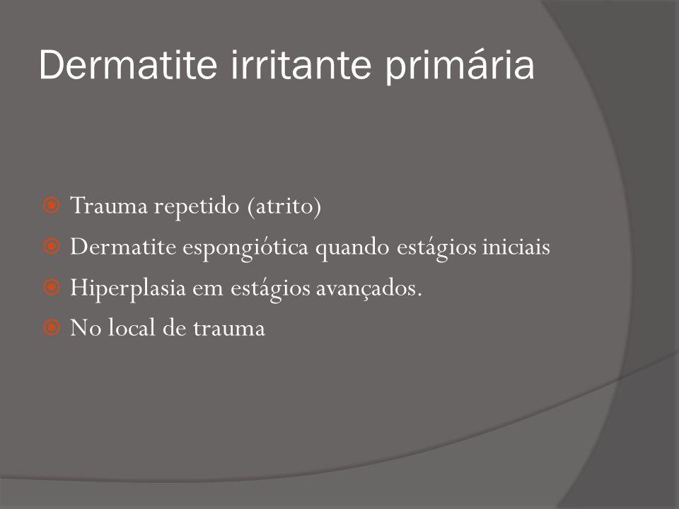 Dermatite irritante primária