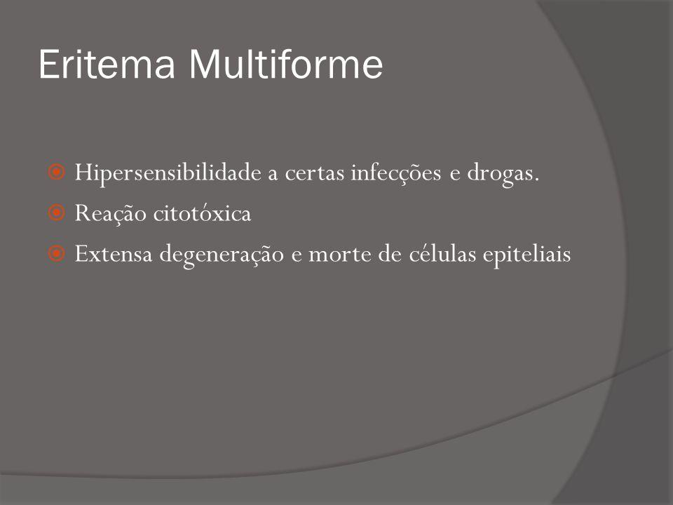 Eritema Multiforme Hipersensibilidade a certas infecções e drogas.