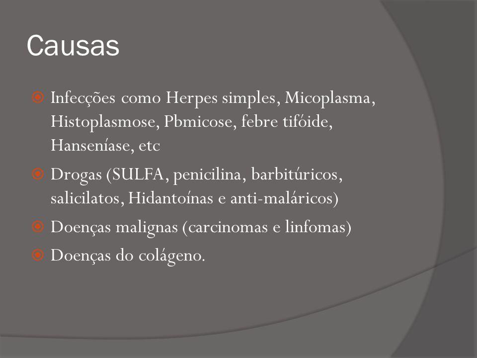 Causas Infecções como Herpes simples, Micoplasma, Histoplasmose, Pbmicose, febre tifóide, Hanseníase, etc.